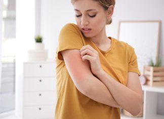 5 pielęgnacyjnych wskazówek dla posiadaczek atopowej skóry (2)